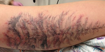 Infezione tatuaggio avambraccio