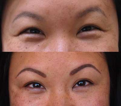 Tatuaggio alle sopracciglia - prima / dopo