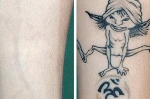 come rimuovere un tatuaggio