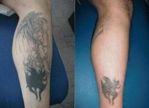 Come farsi rimuovere un tatuaggio senza avere brutte cicatrici
