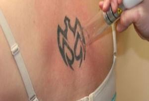 rimozione laser tatuaggio