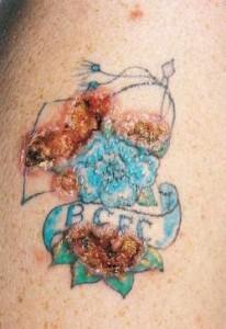allergia-tatuaggi-pigmenti