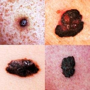 melanoma e tatuaggio