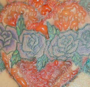 tattoo reazione allergica
