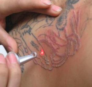 laser tattoo