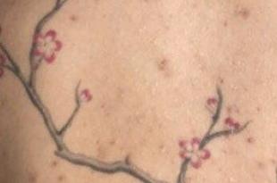 acne tatuaggio