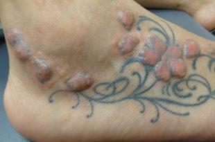 Allergia ai colori dei tattoo